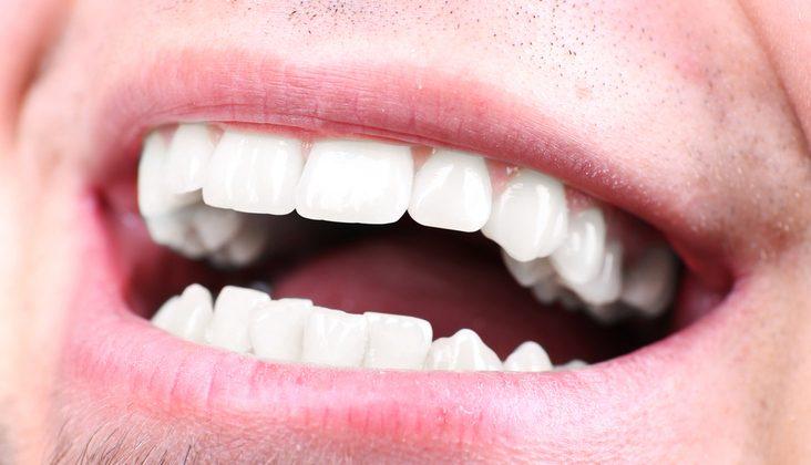 restorative-dentistry-treatment