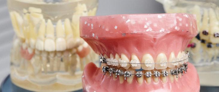dental-overbite